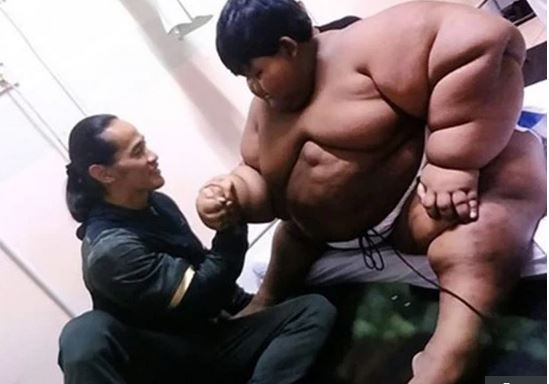 World's Fattest Boy Shows Off Incredible Body Transformation After Losing More Than 30 Stone