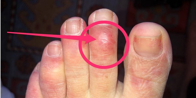 Blistered toe could be a symptom of coronavirus