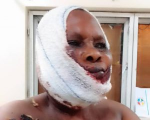 Ogun: Fulani herdsmen shoot, batter woman [VIDEO]
